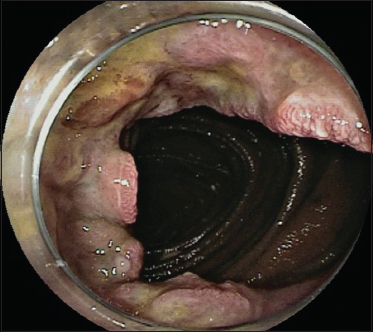 View of Small bowel adenocarcinoma: a cause of persistent