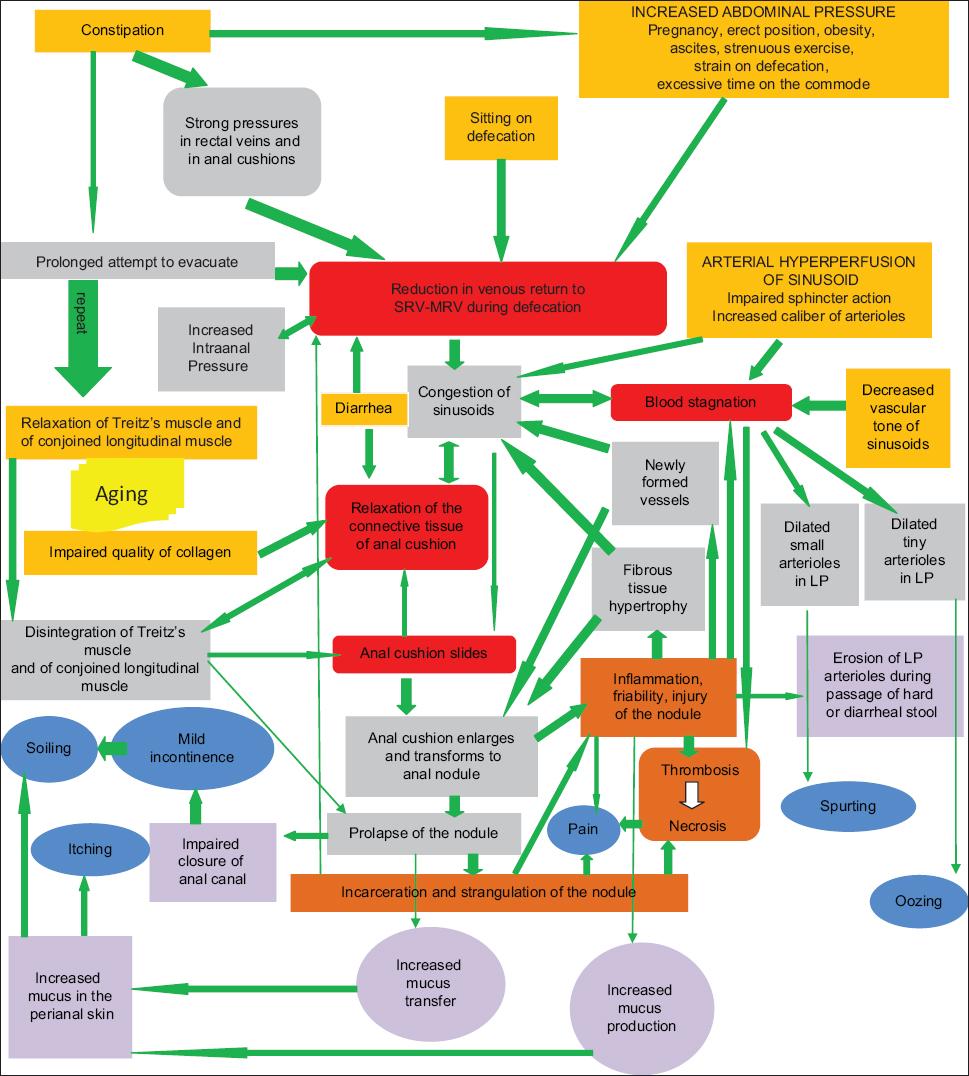 View of Pathophysiology of internal hemorrhoids | Annals of