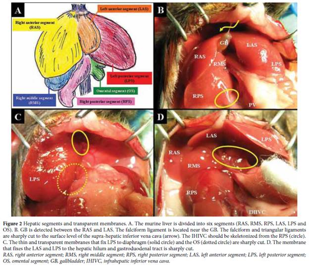 View of Simple and sure methodology for massive hepatectomy in the ...